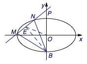QQ20150224-6